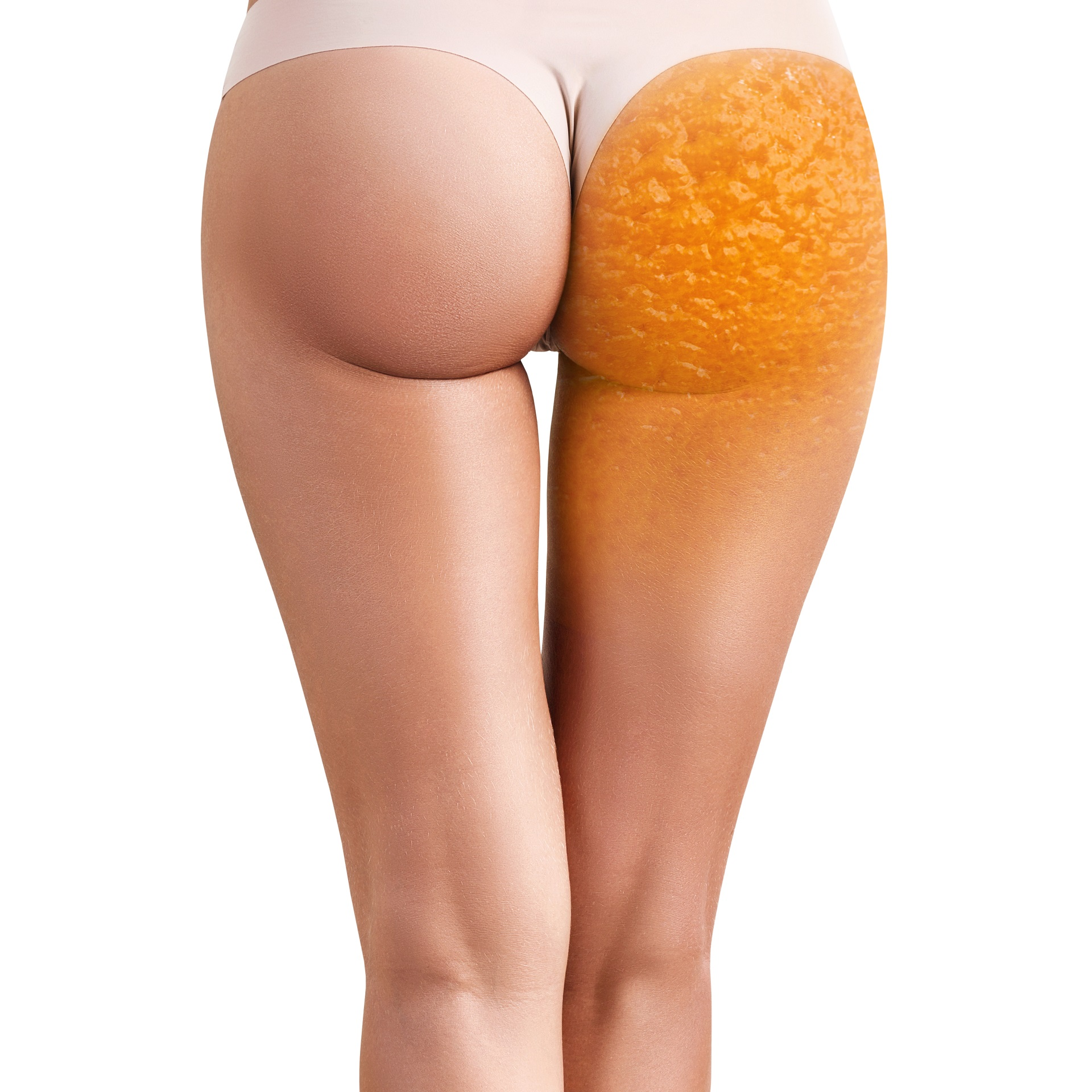 How Women Got Their Worst Enemy Cellulite Maderotherapy Ireland